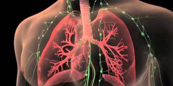 Trasplante Pulmonar